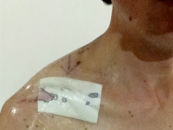 A much smaller incision this time. Importantly, the arrow shows the surgeon where the clavicle is located. :)