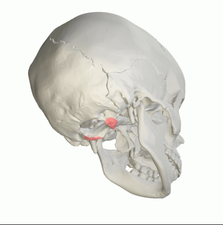Occipital Condyle in pink.